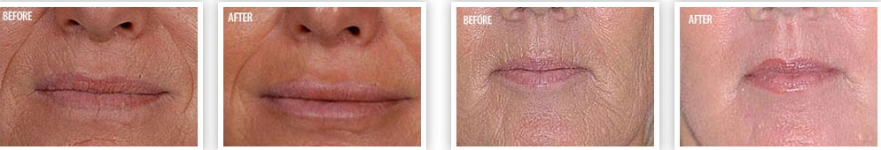 Revitol phytoceramides before after