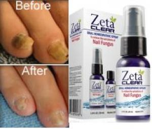 Yellow toenails and toenail fungus treatment? ZetaClear