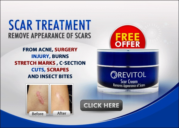 Revitol-Scar-Cream-home remedies for dry skin home remedies for scars