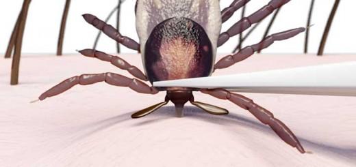 tick borne disease, removing ticks, Remove tick, how to remove tick, tick removal, diseases ticks carry, tick borne diseases, tick diseases