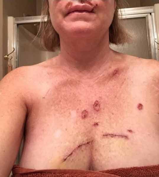 Tanning bed result: Skin cancer